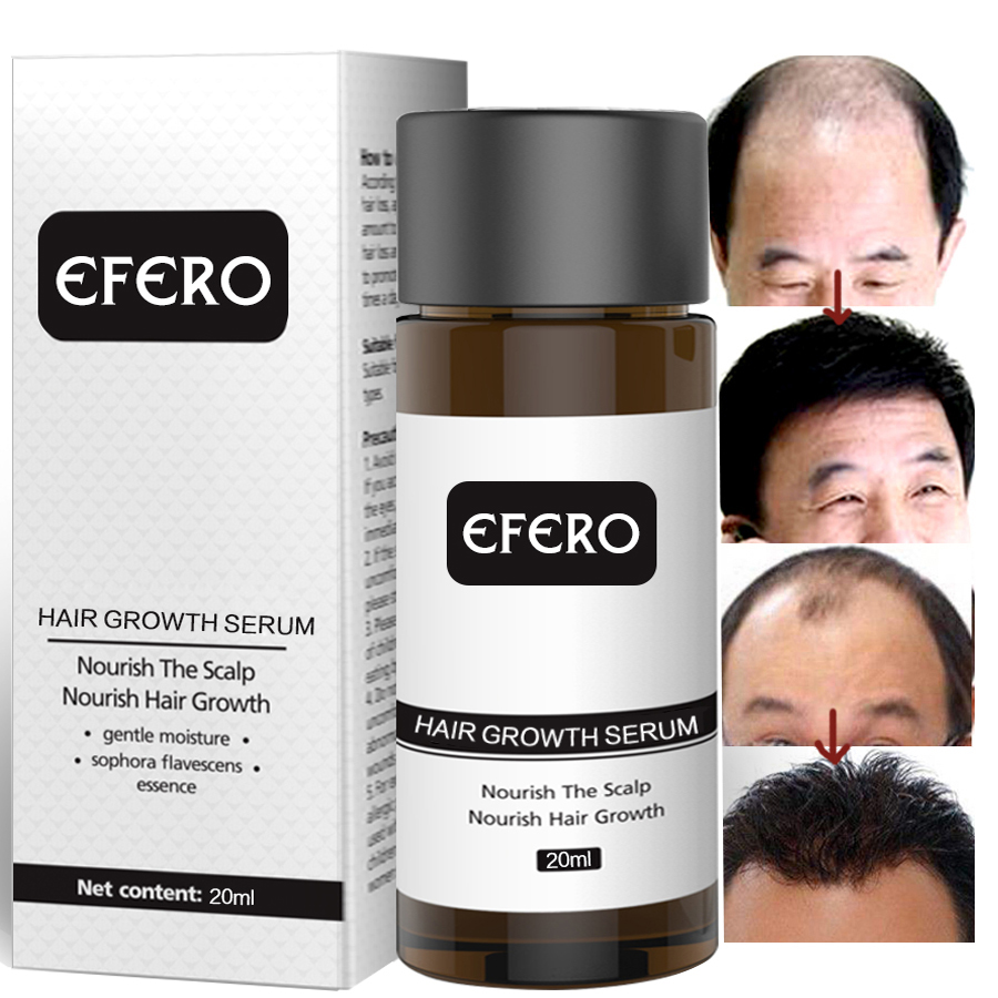EFERO Ginseng Hair Care Essence Treatment For Men And Women Hair Loss Product Fast Powerful Hair Growth Serum Repair Hair in Hair Loss Products from Beauty Health