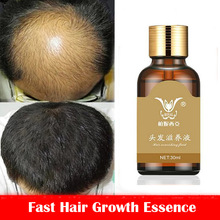 Fast Hair Growth Essence Hair Loss Products Hair Growth Fibras Cabelo Shampoo Cremes De Tratamento Para Cabelos Beauty Hair Care