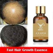 Fast Hair Growth Essence Hair Loss Products Hair Growth Fibras Cabelo Shampoo Cremes De Tratamento Para Cabelos Beauty Hair Care