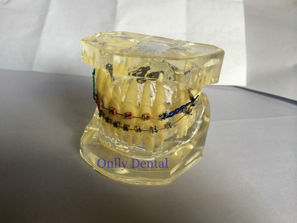 1 Pcs Dental Study Transparent Teeth Model Standard Orthodontic Model Brace Brackets Typodont