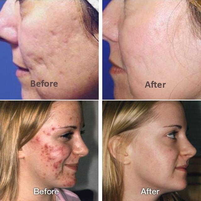 2pcs/lot Hyaluronic Acid Skin Repair Essence Hydration Moisturizing Face Skin Care 1