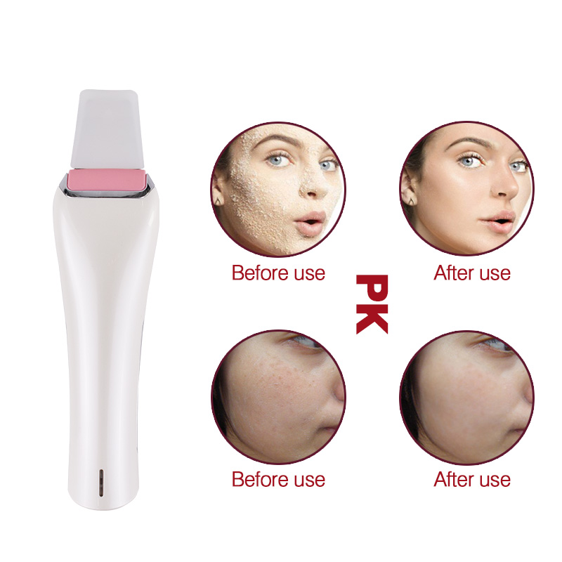 Clean Face Peeling Blackhead Acne Removal Tool Skin Care Beauty Equipment/Ultrasonic Deeply Facial Skin Scrubber Pore Cleaning