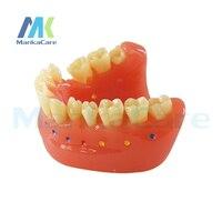 Manka Care Interdental Brush Model Oral Model Teeth Tooth Model