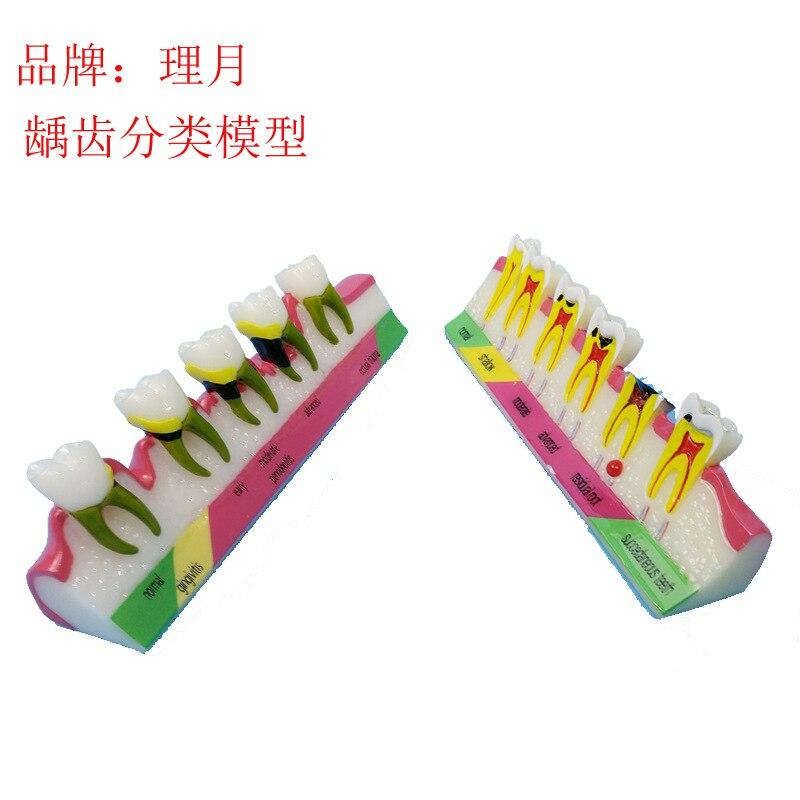 Colored Human Oral Teeth Model Periodontal Disease Model Teeth Pathology Model Medical Teaching Aids Dentist Teaching Equipment