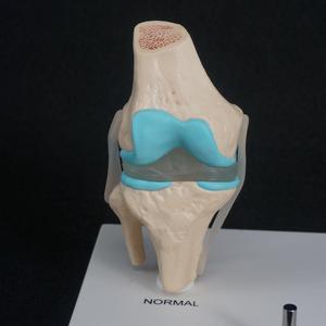 Image 3 - กายวิภาคของมนุษย์เสื่อมเข่า Joint ชุดการแพทย์ Skeleton Anatomy ทรัพยากรการเรียนการสอน