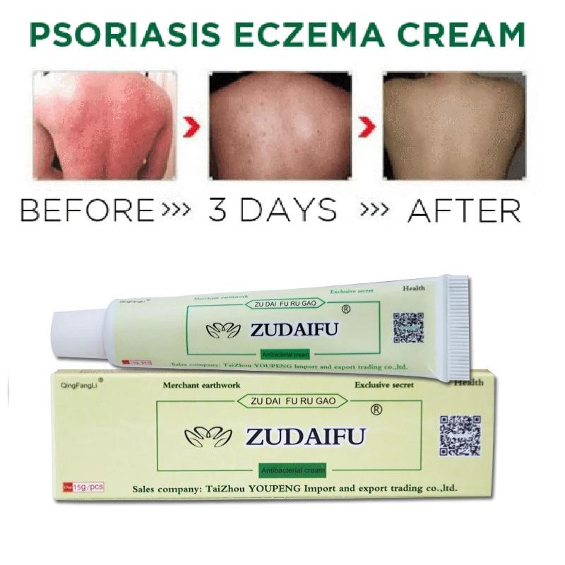 korean skin care for psoriasis