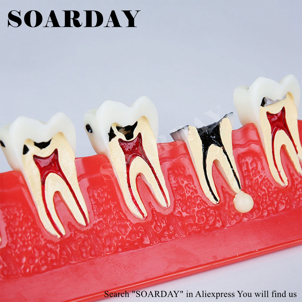 Caries Model Development of Caries and Secondary CariesCaries Model Development of Caries and Secondary Caries