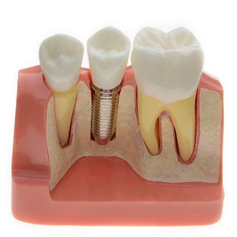 Denshine,2017 New Arrival Dental Demonstration Teeth Model Implant Analysis Crown Bridge dentoform macro implant crown bridge demostratation teeth tooh typodont teeth model