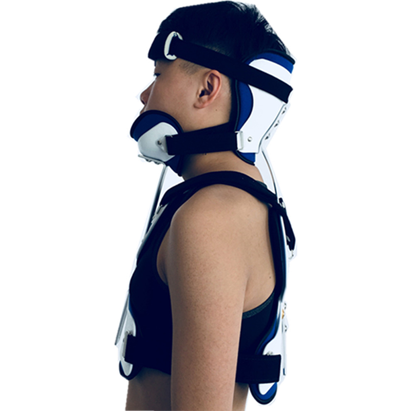 FULI supports the thoracic orthosis of the head and neck, and the upper limb is stable after operation.