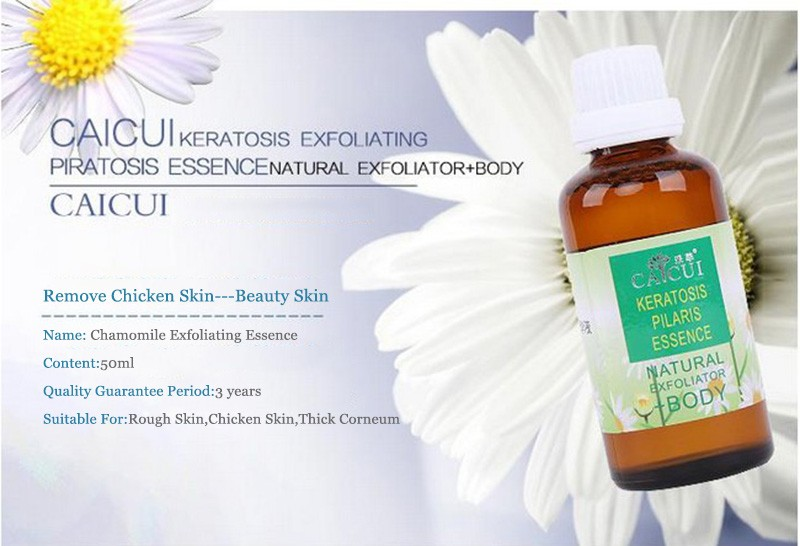 Health Skin Care Genuine Chamomile Exfoliating Serum Remove Chicken Skin Folliculitis Treatment Shrink Pores Essential Oil 50ml 1