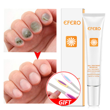 EFERO Nail Repair Essence Oil Fungal Remove Onychomycosis Infection Anti Skin Care Cream Nourishing