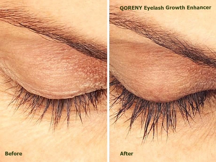 QORENY-eyelash-growth-enhancer