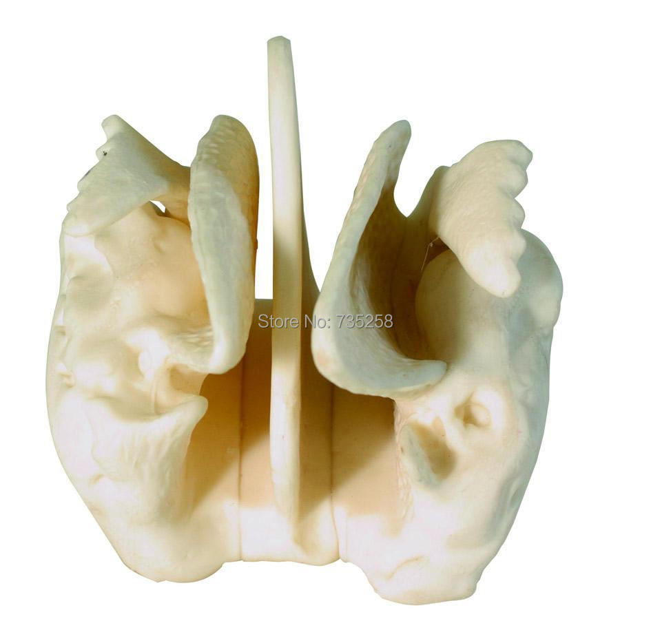 Amplified Ethmoid Bone,Four Times the Ethmoid Bone Model Amplification amplified alar bone sphenoid bone amplification model