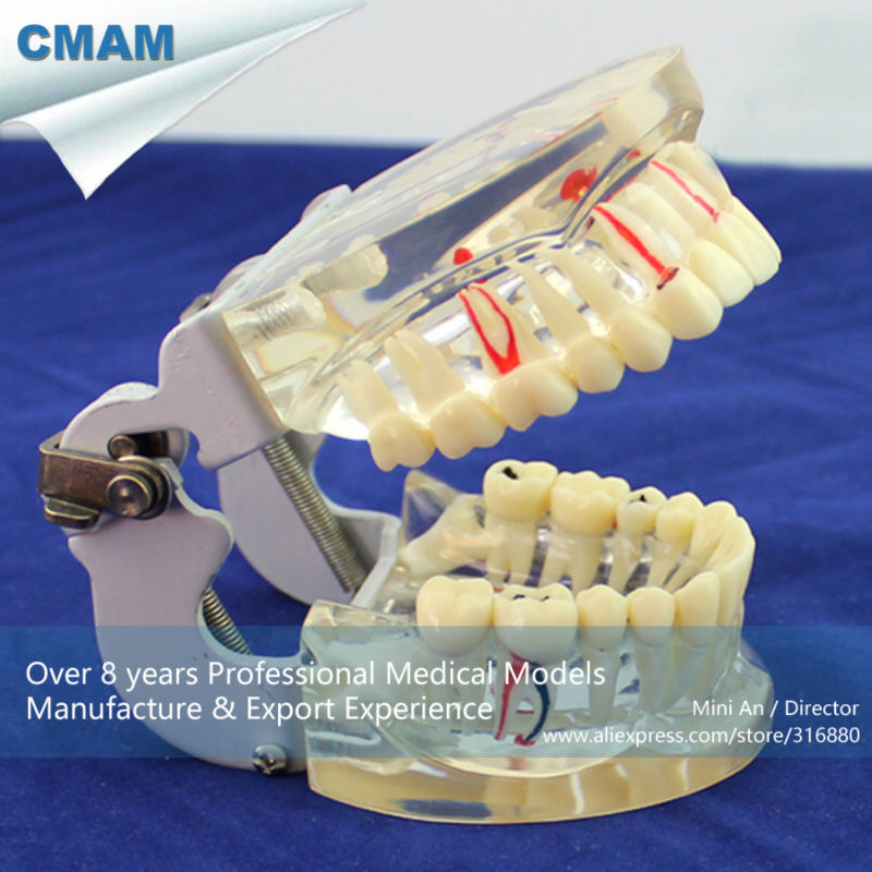 CMAM-DENTAL07 Transparent Adult Pathological Teeth Model for Dental Study and Communication purnima sareen sundeep kumar and rakesh singh molecular and pathological characterization of slow rusting in wheat