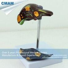 CMAM-VISCERA09 Desktop Show Medical Science Anatomical 1/2 Size Diseased Liver Model