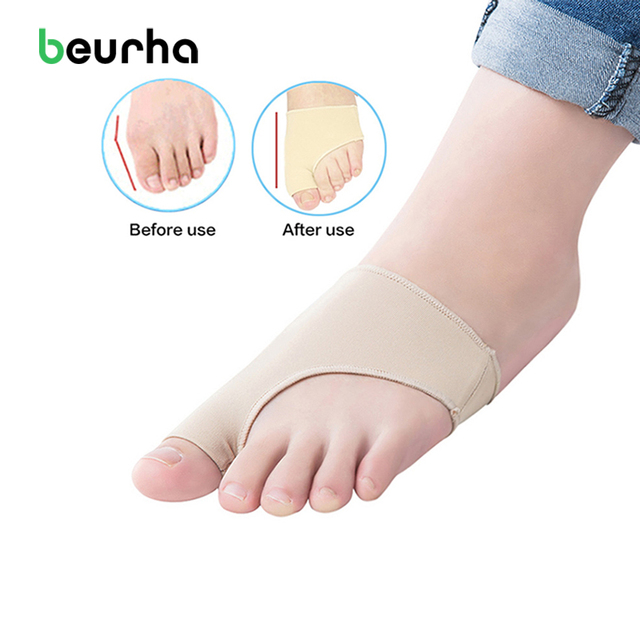 hallux valgus corrector alignment separators stretchers bunion rh aliexpress com Foot Bunion Pain Bunyon Foot Pinky Toe