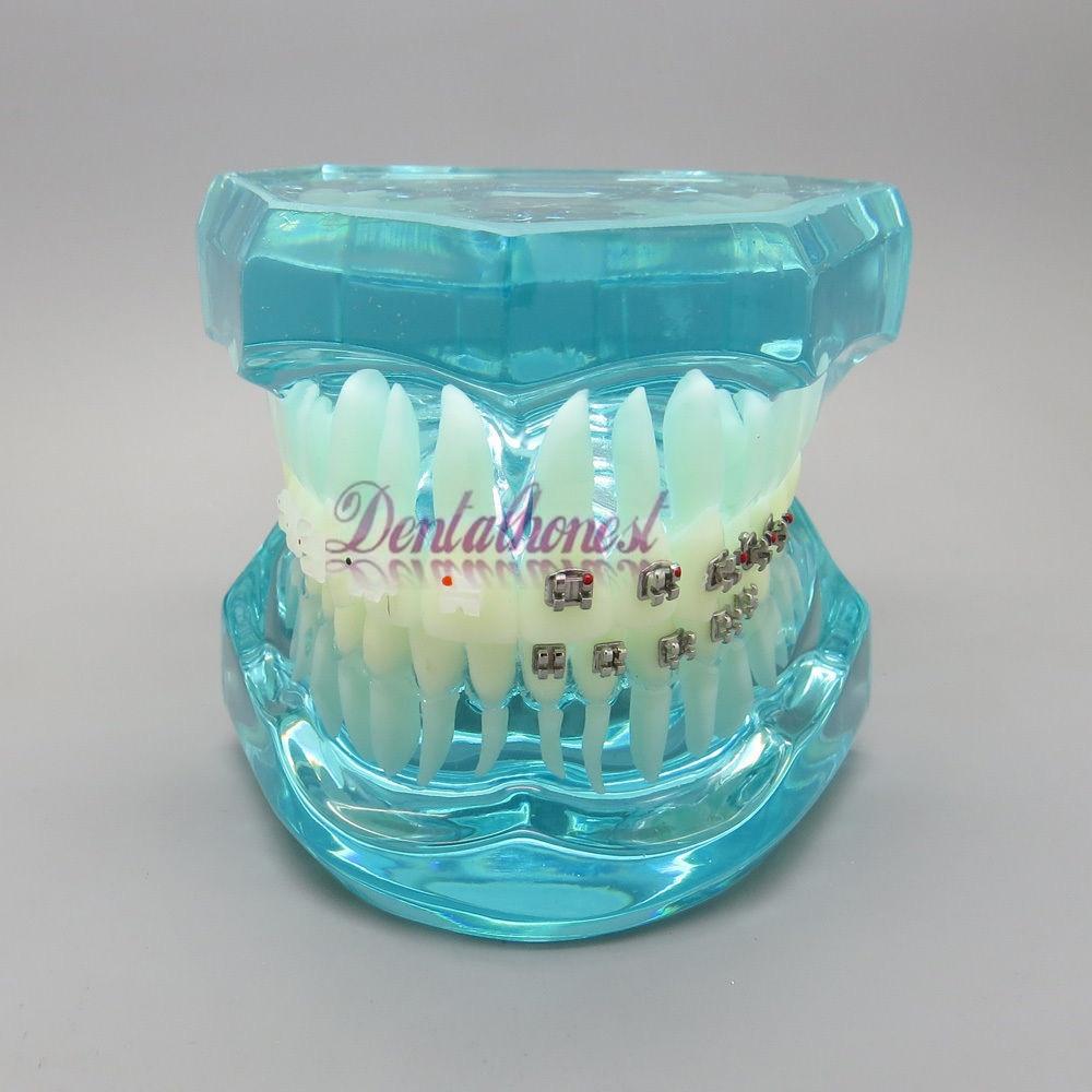 BLUE Dental Orthodontics Communication Model With 4 Types of Brackets dissected model of dental disease dental disease pathology decomposition model