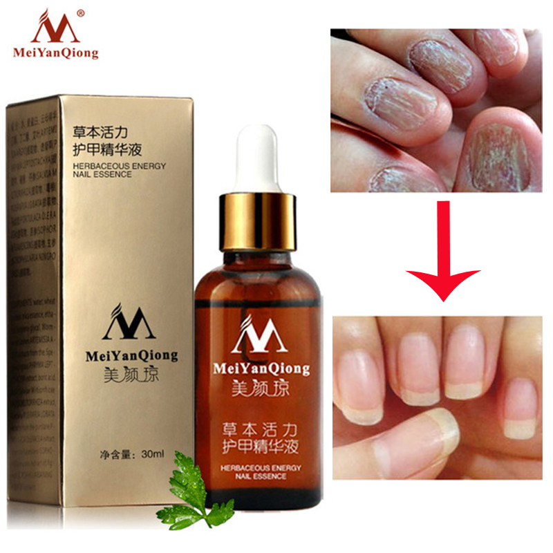 NEW!!!Fungal Nail Treatment Essence Nail And Foot Whitening Toe Nail Fungus Removal Feet Care Nail Gel Can Drop Shipping