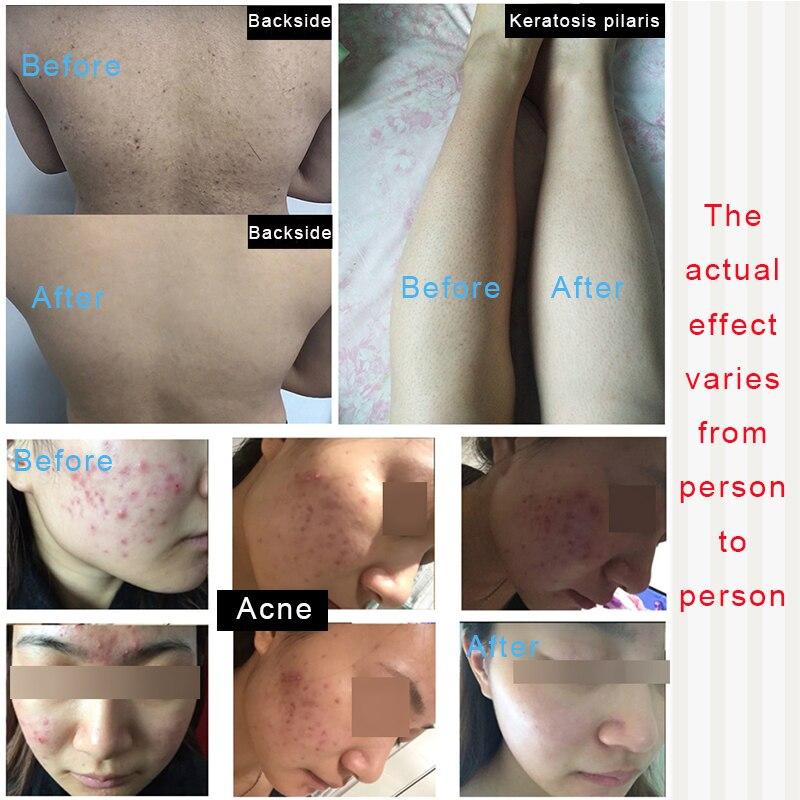 Crazy sales glycolic acid cream 50 acne removerAHA treatment Exfoliator wrinkle remover blackhead peeling keratosis pilaris in Toners from Beauty Health