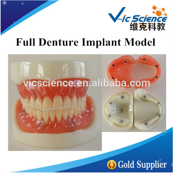 Full Denture Implant Model/Implant Model/Denture Model attachments retaining implant overdentures