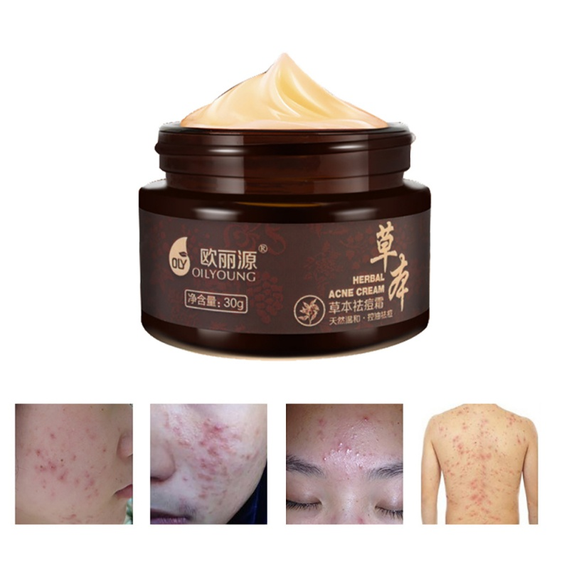 1pcs Herbal Anti-acne Cream Anti Pimple Spot Acne Scars Blackhead Removal Cream Whitening Beauty Skin Face Care precious chinese herbal formula whitening cream facial mask skin care acne scars remove face mask blackhead mite treatment 160g
