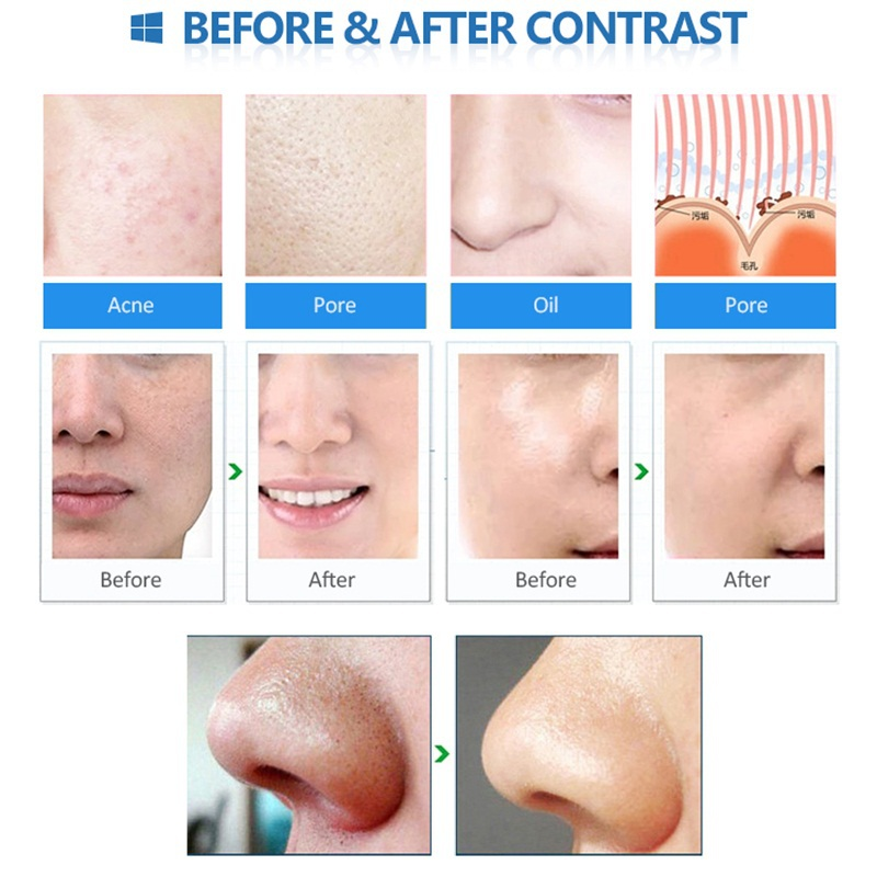 Upgraded Diamond Dermabrasion Peeling Facial Pores Vacuum Suction Cleaner Acne Blackhead Remover Beauty Skin Lifting Equipment