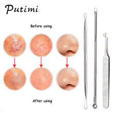 Putimi 3Pcs Blackhead Pimple Acne Remover Tool Spoon for Face Cleaning Skin Care Acne Tweezers Comedone Blemish Extractor Needle недорого