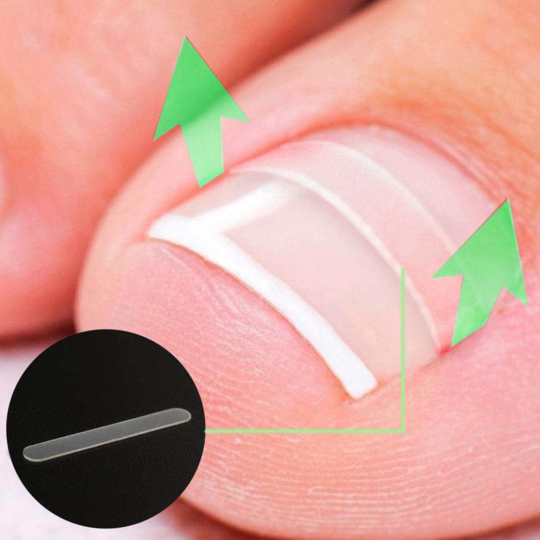 Paronychia Correction File Elastic Patch Corrector Treatment Tools 10pcs/box Toe Nail Ingrown Correction Sticker Patch Foot Care