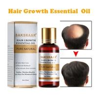 Уход за волосами, эфирные масла для роста волос, эссенция, оригинал, Подлинная 100%, выпадение волос, жидкая, уход за здоровьем, красота, сыворо...