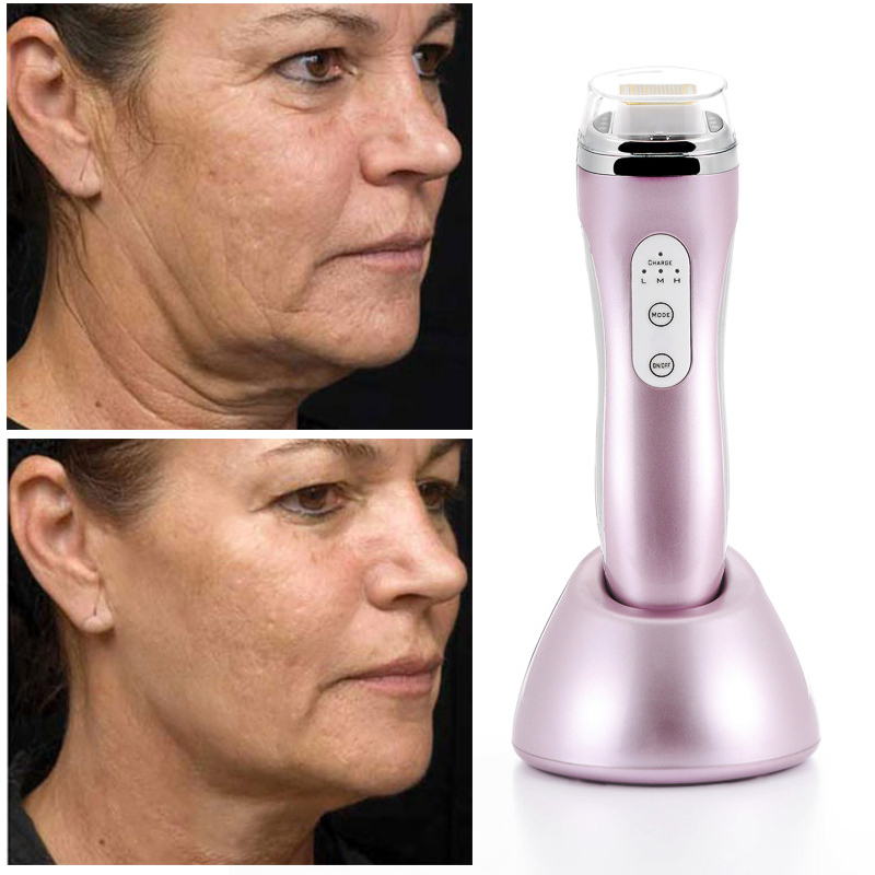 Radio Frequency RF Face Wrinkle Removal Anti-aging Skin Tightening  Facial Massage Rechargable Body Slimming lose weight device kingdom kd 9901 radio frequency skin tightening facial massage device