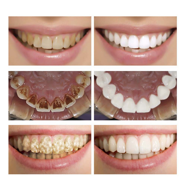 Remove Plaque Stains On Teeth Using Cleaning Serum - Teeth Whitening