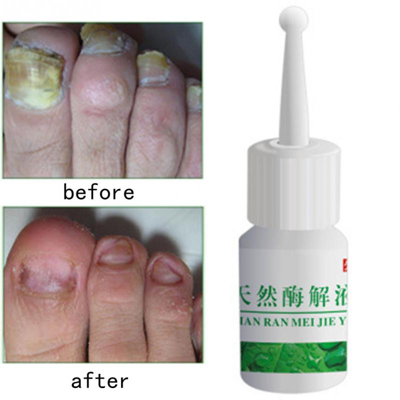 Nail Treatment Onychomycosis Gentle Nourishing Oil Beautifying Bright Healthy Polish In Treatments From Beauty Health On