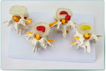 Lumbar Spine Lesions Presentation Model,Human Lumbar Disease Model