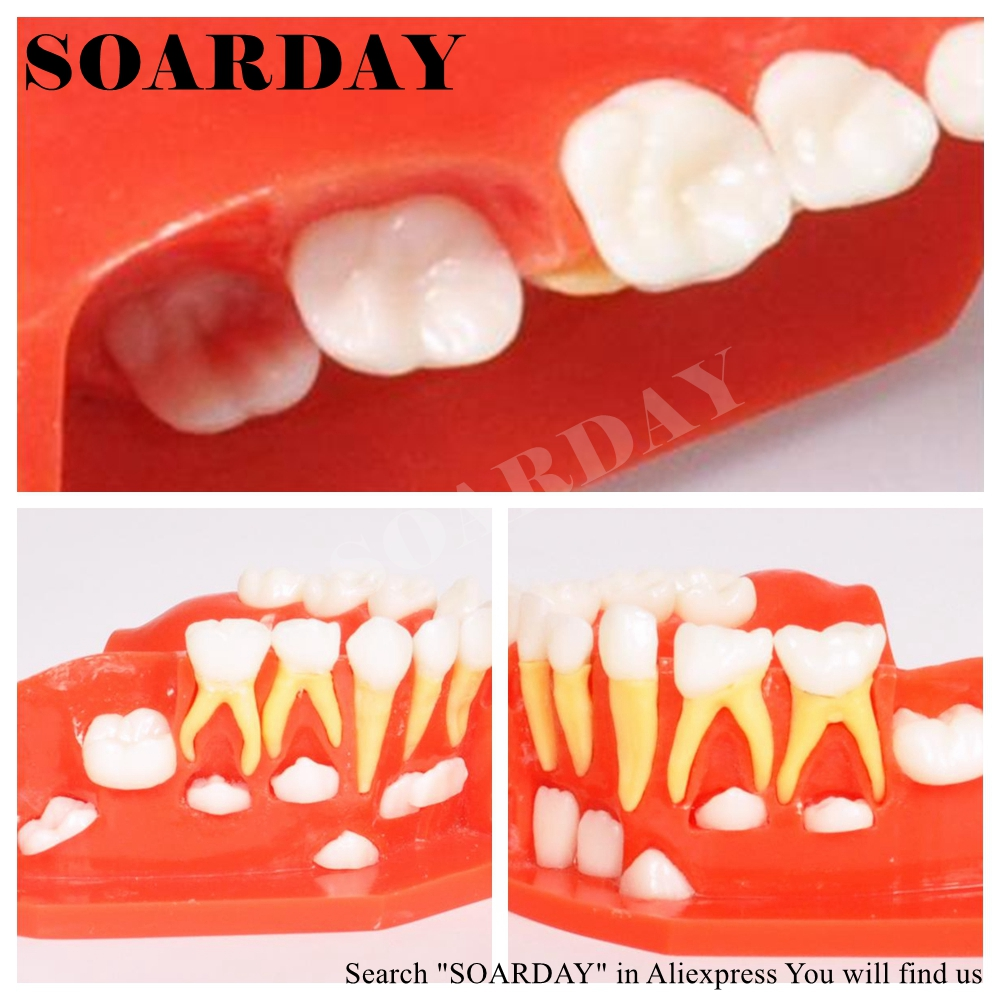 SOARDAY Primary Teeth Alternative Model for 3 6 years old Child ...