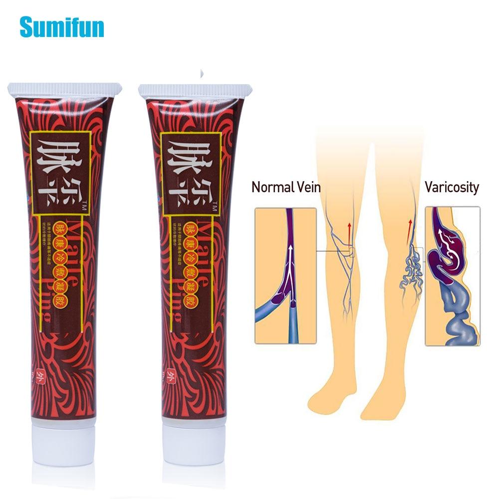 Sumifun 2pcs Varicose Veins Ointment Vasculitis Phlebitis Spider Cream Pain Varicosity Angiitis Removal Medical Plaster D1733