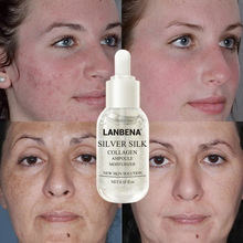 LANBENA 24K Gold+Silver Silk +Gold Collage Ampoule Serum Whitening Anti-wrinkle Lighten Nourishing Repairing Skin Care !