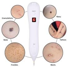 Laser Freckle Removal