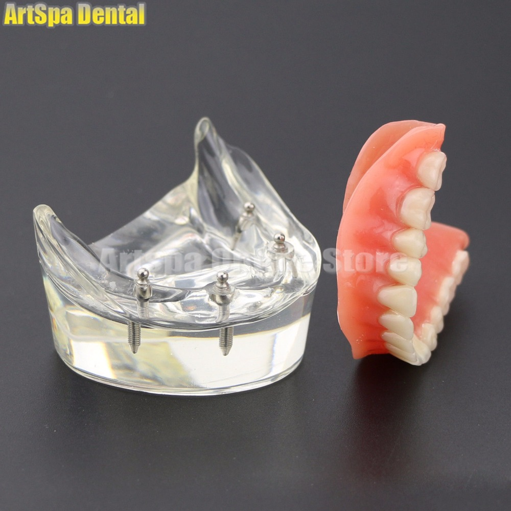 1Pc Dental Teeth Study Model Overdenture Inferior 4 Implant Demo Model 6002 02 Free Shipping 2017 teeth whitening oral irrigator electric teeth cleaning machine irrigador dental water flosser professional teeth care tools