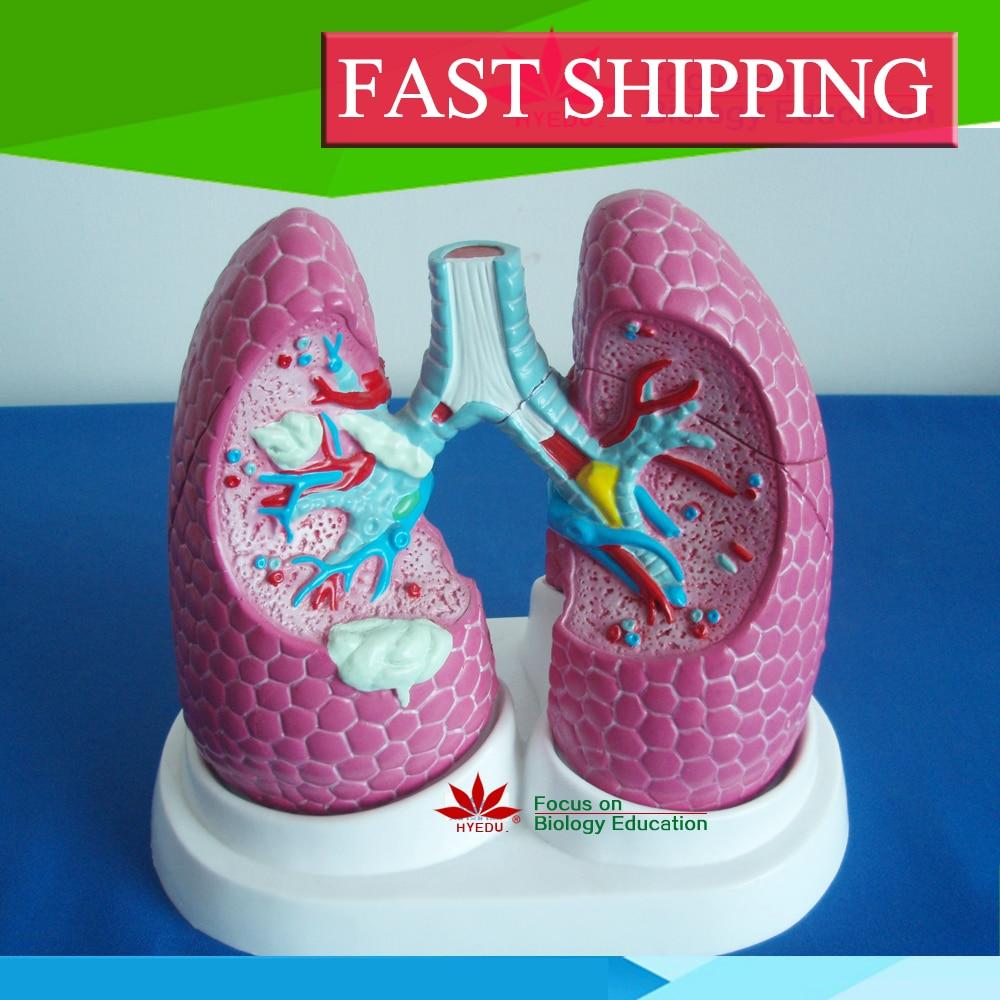 Limited time offer Anatomy biological Bronchus and lung pathology model anatomy education bronchopulmonary pathology lung cancer model