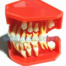 Dental Children Deciduous Teeth Model Replacement Model Permanent Teeth Alternate Display Removable Demonstration for Teaching 6 times dental caries comparation anatomy teeth model for dental anatomy lab teaching studying researching tool