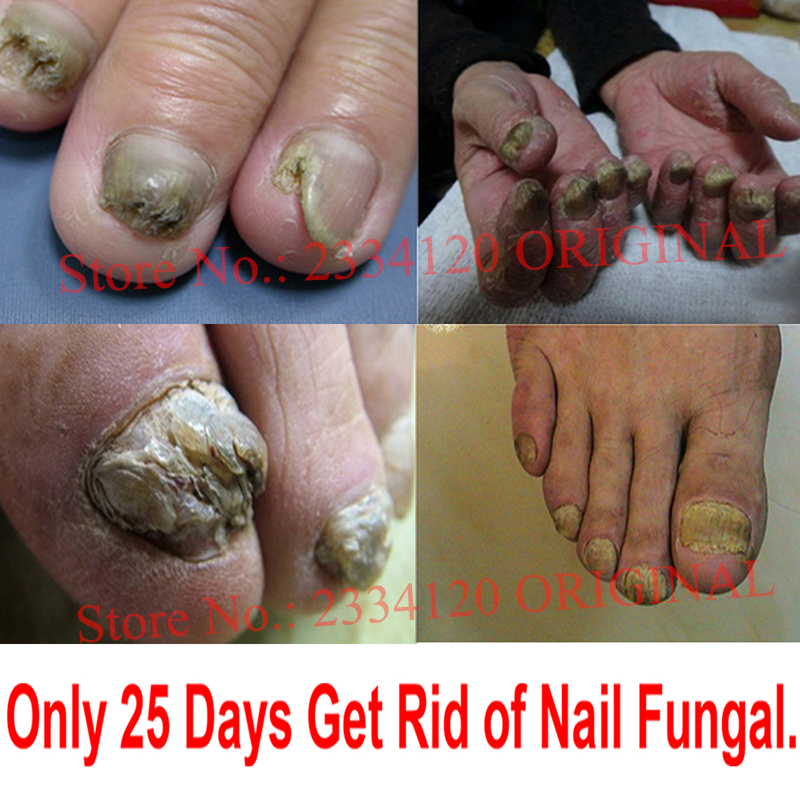 Herbal Fungal Nail Treatment Essence Toe Nail Finger Anti Fungus ...