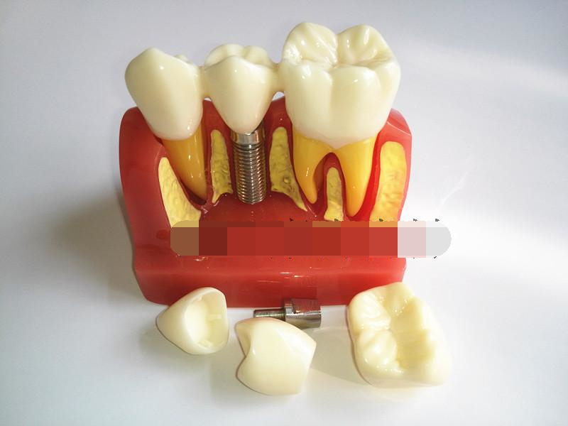 High Quality 4 Times Dental Teeth Implant Model for Doctor-Patient Demonstration and Porcelain Bridge Restoration sagitally section model about tissue decomposition model for doctor patient communication model with magnetic