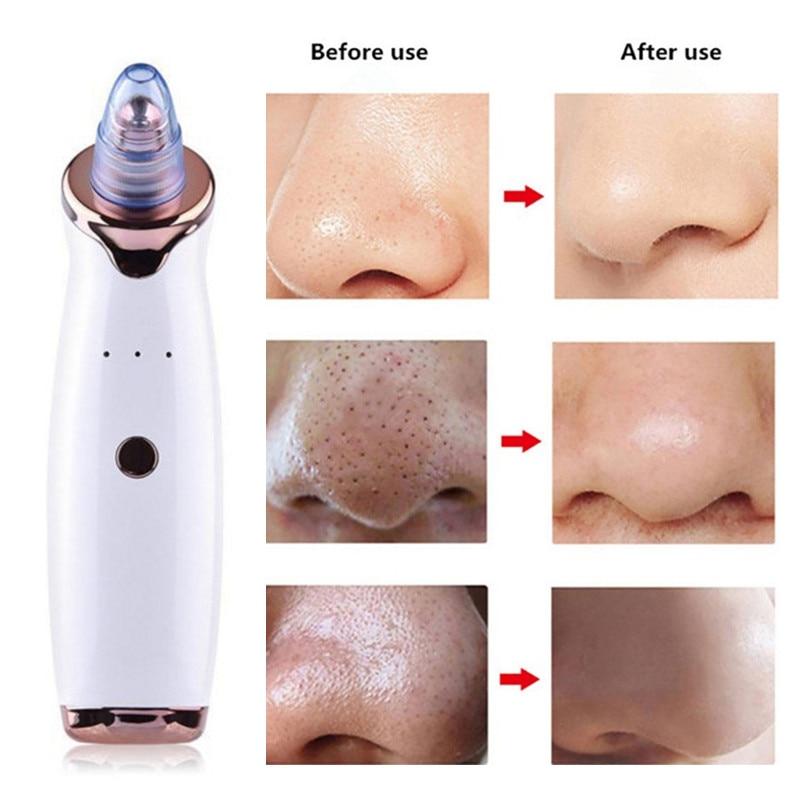 Electric Blackhead Remover Skin Care Pore Vacuum Acne Pimple Removal Vacuum Suction Tools Facial Diamond Dermabrasion Machine