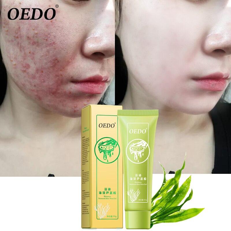 OEDO Natural Seaweed Aloe Vera Gel Face Moisturizer Whitening Cream Acne Scar Skin Sunscreen Acne Treatment Skin Care