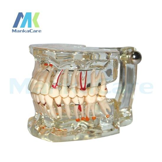 manka cuidar modelo com metade do implante patologia oral modelo dente dentes modelo