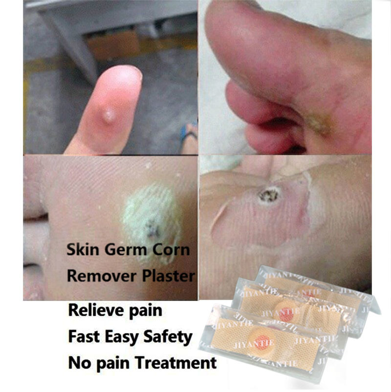 skin germ Corn Remover Plaster 6PCS Relieve pain Fast Easy Safety skin care No pain Treatment