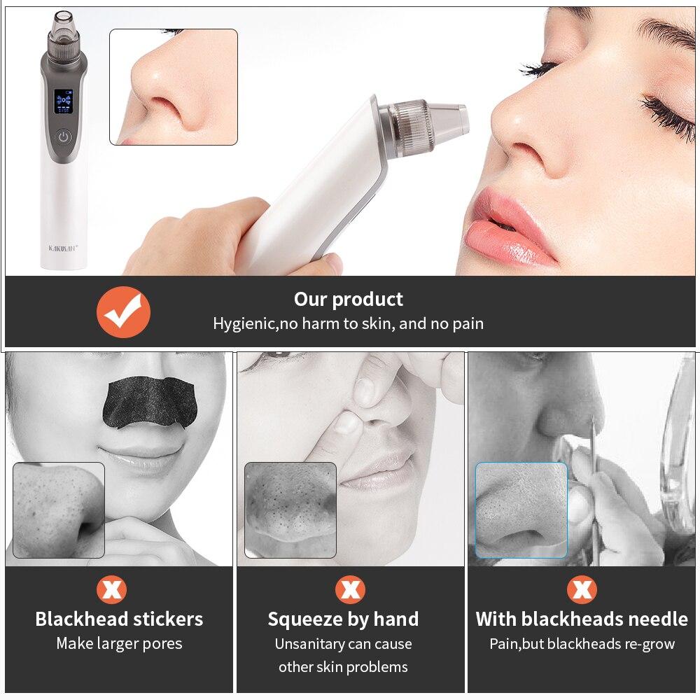 profunda acne espinha remoção sucção a vácuo rosto limpo