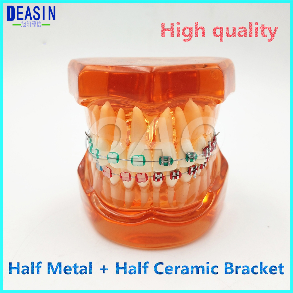 Teeth Model with Metal & Ceramic Brackets Irregular Tooth Ortho Metal Dentist Patient Student 2016 dental orthodontics typodont teeth model half metal half ceramic brace typodont with arch wire