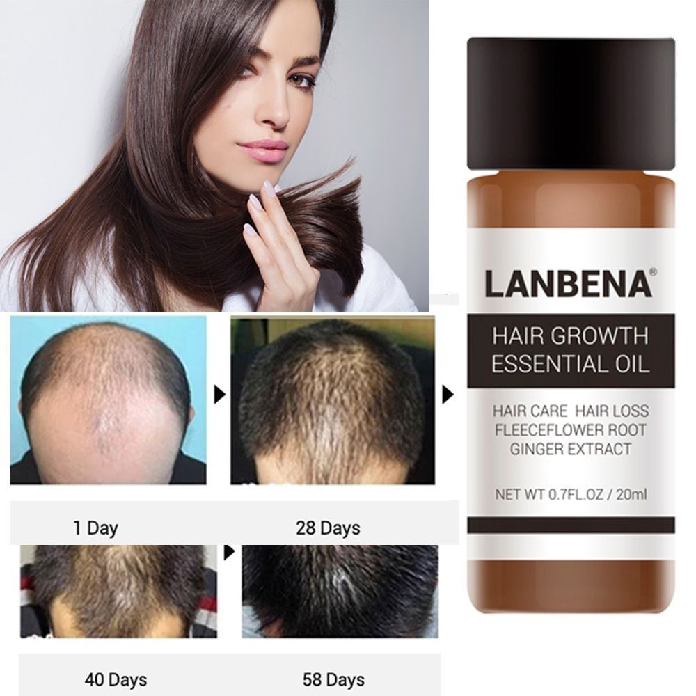 1 Pc 30ML LanBeNA Powerful Hair Growth Essential Oil Treatment anti Hair Loss Hair Care Liquid For Men and Women TSLM2