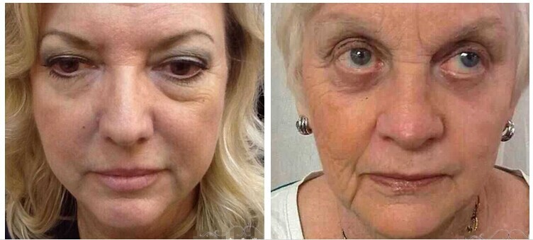 1x 2x 5x 10x 20x Boto x Instantly Ageless Argireline Face Lift Skin Care Product Powerful